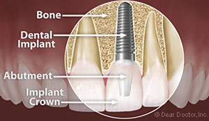 dental implant financial assistance