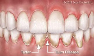 Gum Disease Walnut Grove Ca Infinity Dental Care
